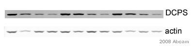 Western blot - DCPS antibody (ab57314)