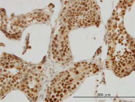 Immunohistochemistry (Formalin/PFA-fixed paraffin-embedded sections) - RAD18 antibody (ab57447)