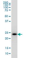 Western blot - PCTP antibody (ab57479)