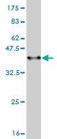 Western blot - ADAM17 antibody (ab57484)