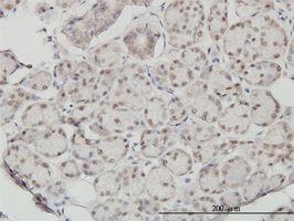 IHC-P - SSH3 antibody (ab57485)