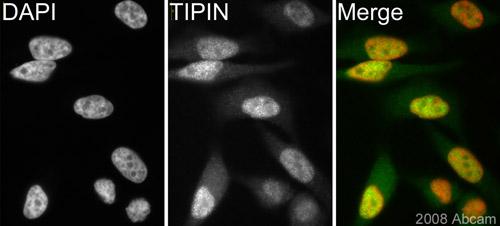 Immunocytochemistry/ Immunofluorescence - TIPIN antibody (ab57488)