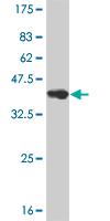 Western blot - Neurogenin 2 antibody (ab57560)