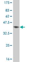 Western blot - TXK antibody (ab57673)