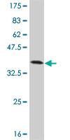 Western blot - TXK antibody (ab57674)