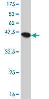 Western blot - CPI17 alpha antibody (ab57698)