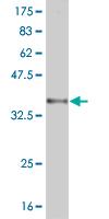 Western blot - RNF122 antibody (ab57740)