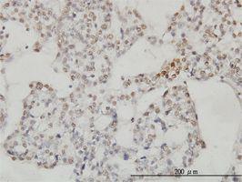 IHC-P - SESN2 antibody (ab57810)