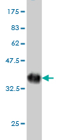 Western blot - CYorf15B antibody (ab57844)
