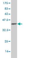 Western blot - RFC3 antibody (ab57862)