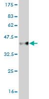 Western blot - cbx2 antibody (ab57890)