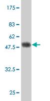 Western blot - RGS4 antibody (ab57924)