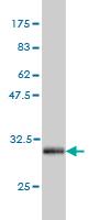 Western blot - SLITL2 antibody (ab57971)