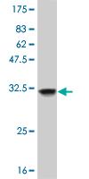 Western blot - Olig1 antibody (ab57987)