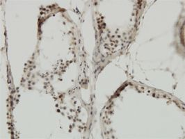 IHC-P - TIF1 alpha antibody (ab57994)
