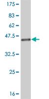 Western blot - NEDD4-2 antibody (ab58093)
