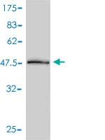 Western blot - PSME2 antibody (ab58120)