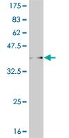 Western blot - WDR36 antibody (ab58129)