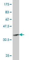 Western blot - SLC22A2 antibody (ab58182)