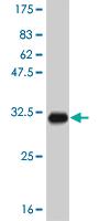 Western blot - SPINK1 antibody (ab58227)