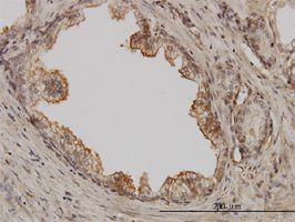 IHC-P - PAK1 antibody (ab58263)