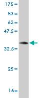 Western blot - Galanin antibody (ab58274)