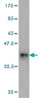 Western blot - RPL18 antibody (ab58325)