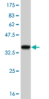 Western blot - TTC1 antibody (ab58376)