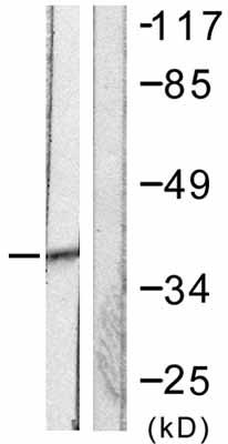 Western blot - SAE1  antibody (ab58383)