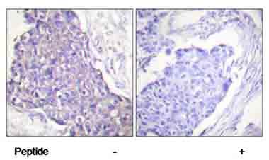 Immunohistochemistry (Paraffin-embedded sections) - CD40 antibody (ab58391)