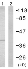 Western blot - Cdk7 antibody (ab58392)