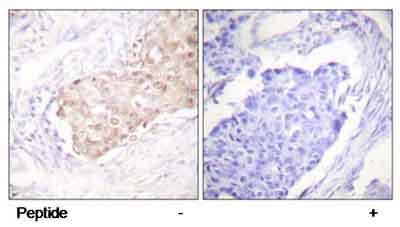 Immunohistochemistry (Paraffin-embedded sections) - EDD antibody (ab58393)