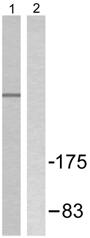 Western blot - Nuclear Receptor Corepressor NCoR antibody (ab58396)