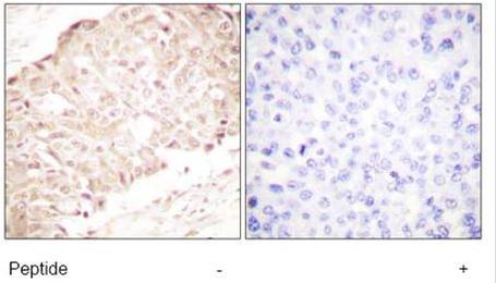 Immunohistochemistry (Paraffin-embedded sections) - SENP1 antibody (ab58417)