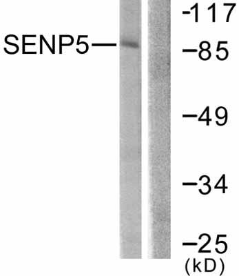 Western blot - SENP5 antibody (ab58420)