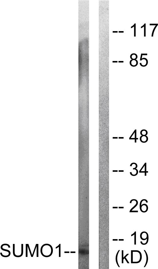 Western blot - Sumo 1 antibody (ab58424)