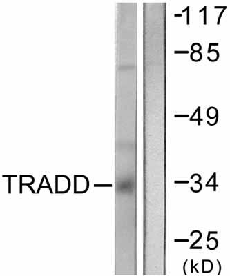 Western blot - TRADD antibody (ab58443)