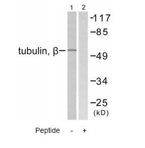 Western blot - beta Tubulin antibody (ab58446)