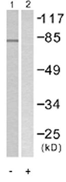 Western blot - Tyrosinase antibody (ab58450)