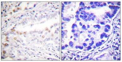 Immunohistochemistry (Paraffin-embedded sections) - SAE2 / UBA2 antibody (ab58451)
