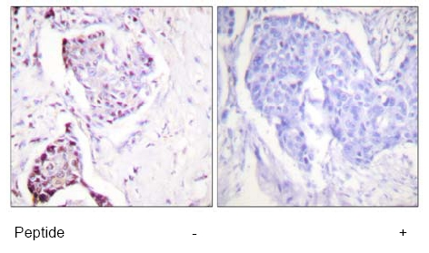Immunohistochemistry (Paraffin-embedded sections) - Ubiquitin antibody (ab58453)
