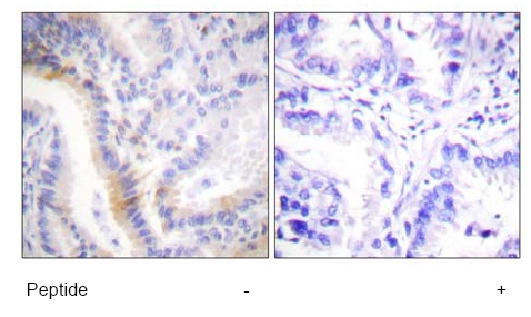 Immunohistochemistry (Paraffin-embedded sections) - Urocortin antibody (ab58459)