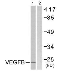 Western blot - VEGFB antibody (ab58461)