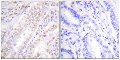 Immunohistochemistry (Paraffin-embedded sections) - XRCC2 antibody (ab58466)