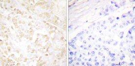 Immunohistochemistry (Paraffin-embedded sections) - Ku70 antibody (ab58470)