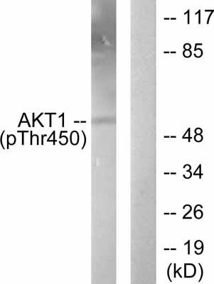 Western blot - AKT1 (phospho T450) antibody (ab58471)