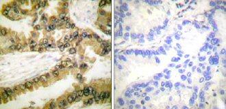 Immunohistochemistry (Paraffin-embedded sections) - AKT1 (phospho T450) antibody (ab58471)