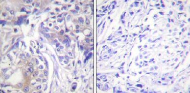 Immunohistochemistry (Paraffin-embedded sections) - Adducin antibody (ab58480)
