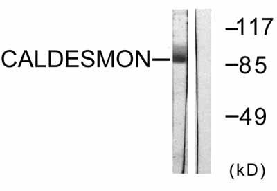 Western blot - Caldesmon antibody (ab58502)