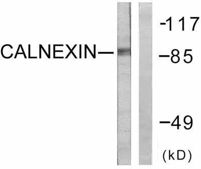 Western blot - Anti-Calnexin antibody (ab58504)